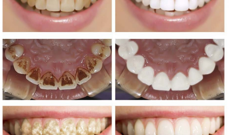 Teeth Whitening Kit 2018 How To Whiten Your Teeth Instantly